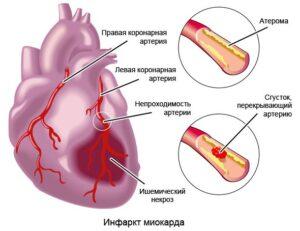 Гипотензия