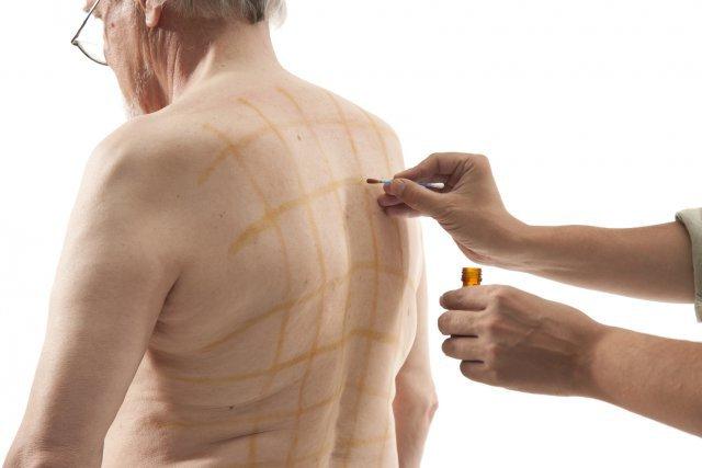 Гипертоникам наносить полосы йодом на спине