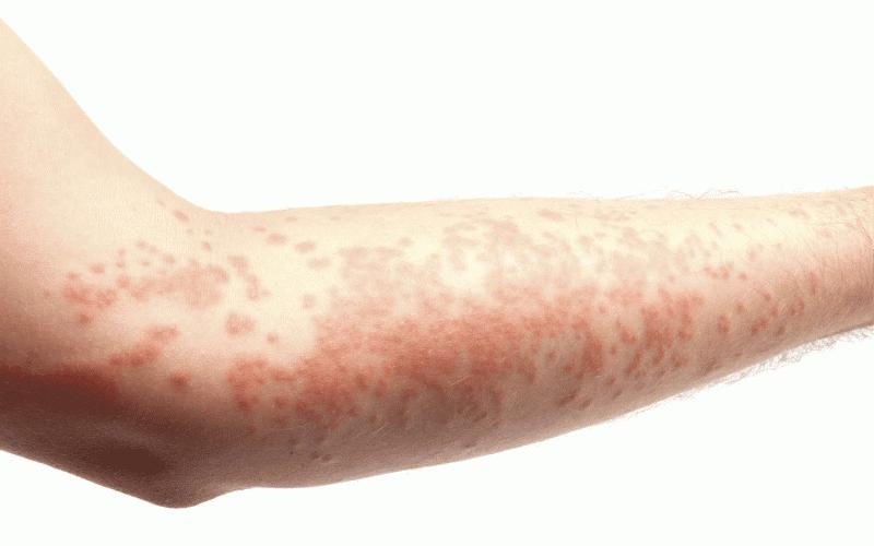 Высыпания на коже