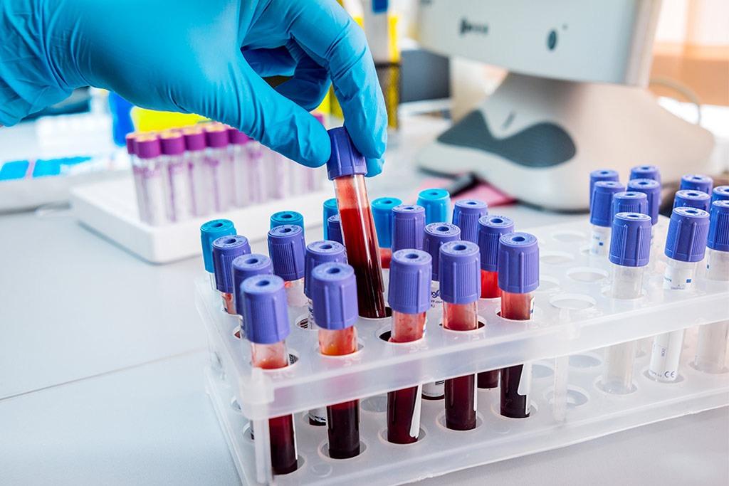 Проверять показатели крови