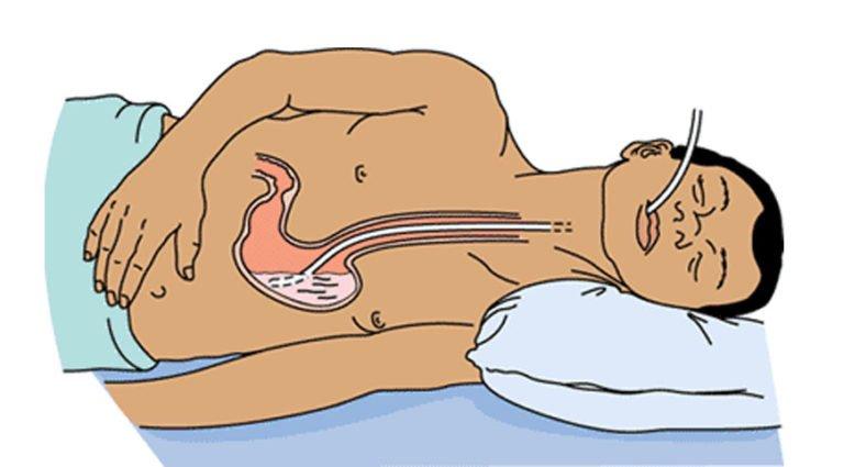 Промыть желудок и кишечник