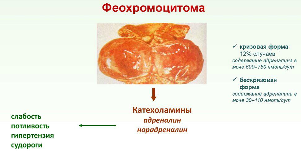 Феорхомоцитома