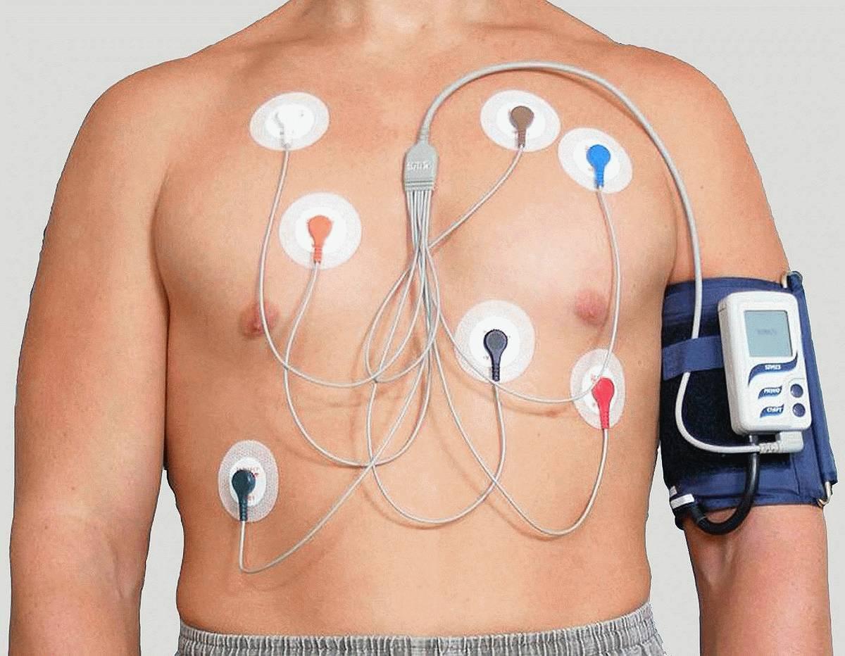 СМАД: что это такое, что показывает обследование, как проводится и где сделать суточное мониторирование артериального давления?