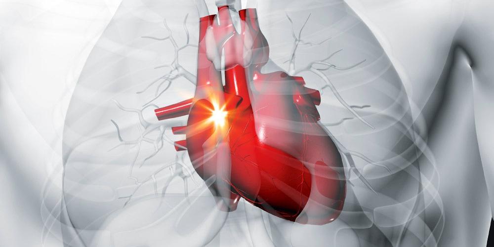Стабильная сердечная ишемия