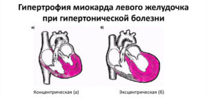 Гипертрофия миакарда