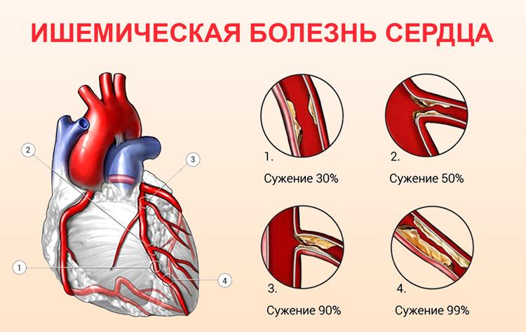 Ишемическое заболевание сердца