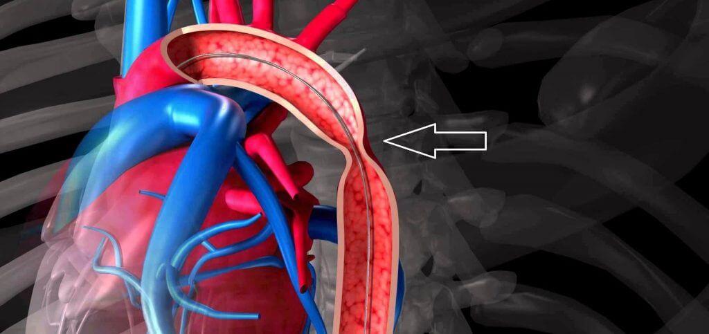Изображение - Давление 160 на 80 у женщины koarktatsiya-aorty-u-detej-1024x483