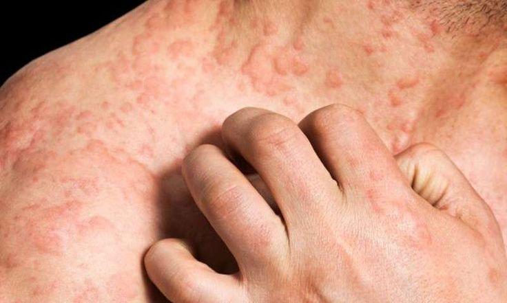 Аллергические заболевания