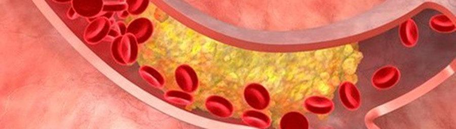 сосуды покрываются холестериновыми бляшками