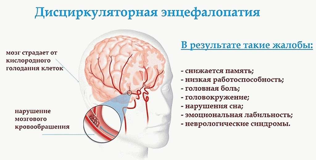 Энцефалопатия
