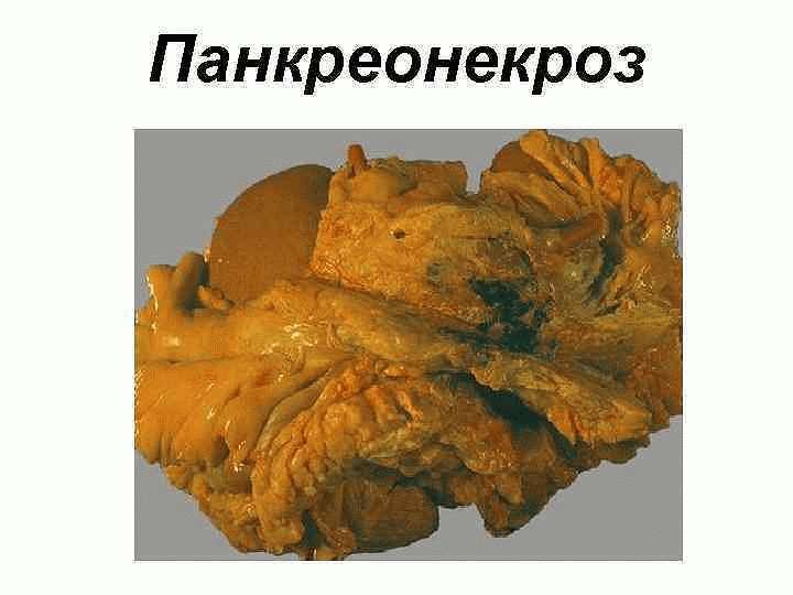 Паранекроз поджелудочной железы
