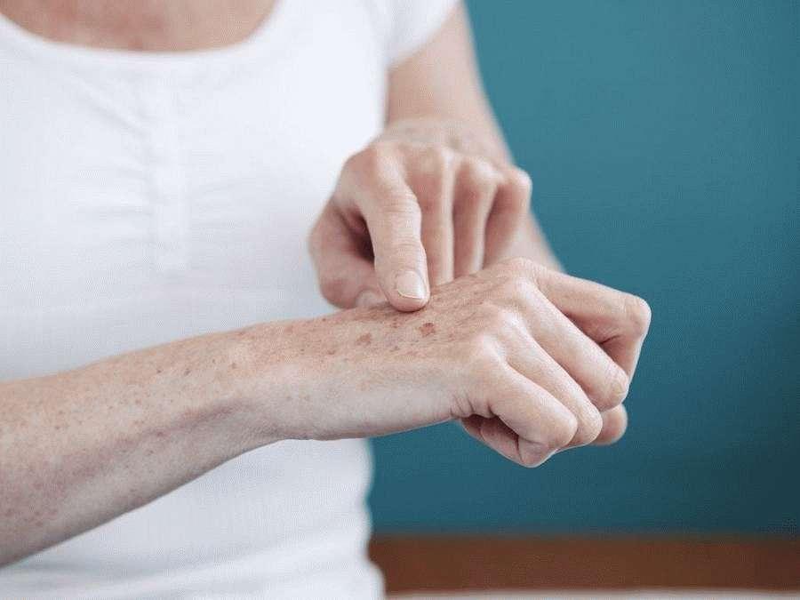 Пятна на коже рук