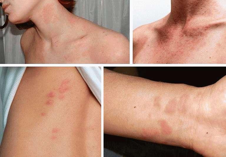 Пятна, вызванные аллергией