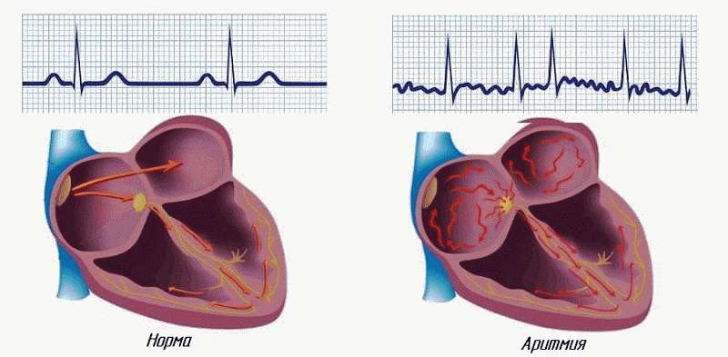 Нарушается частота сердцебиения