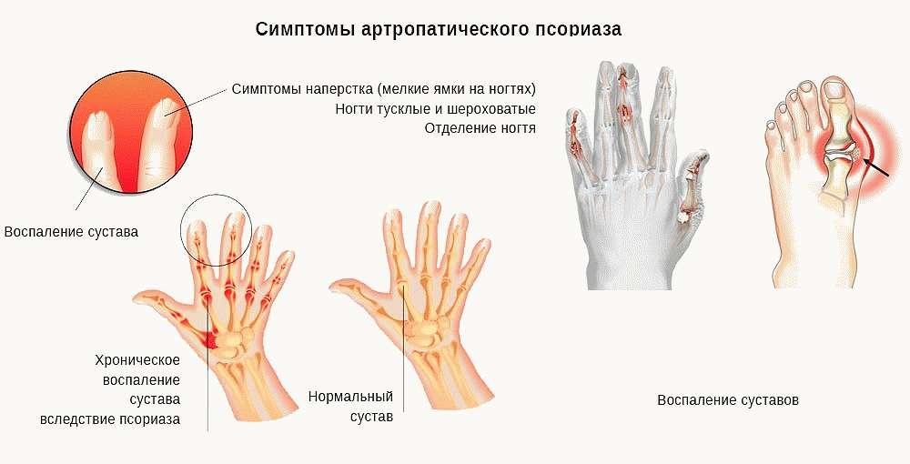 Признаки артропатического псориаза