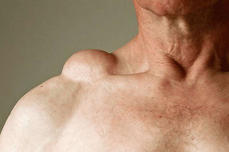 Раковые образования путают с большими жировиками