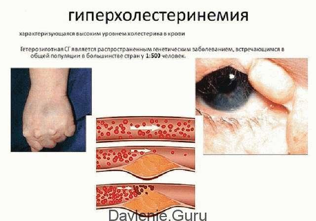 Гиперхолестеринеми