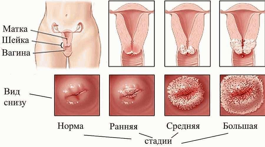 Папилломы на шейке матки