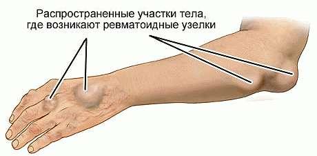 Ревматические подкожные узлы