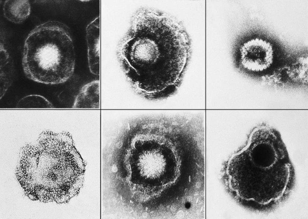 Герпесвирусы