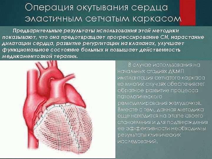 Окутывание сердечной мышцы каркасом