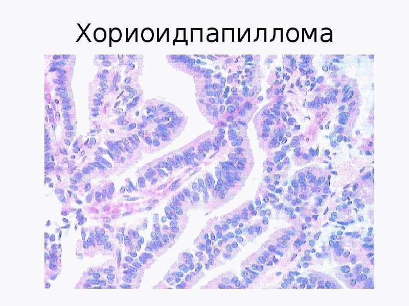 Хориоидпапилома