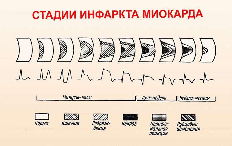 Стадии развития ифаркта микарда