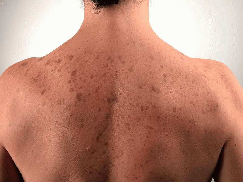 Почему на теле появляются красные пятна и чешутся