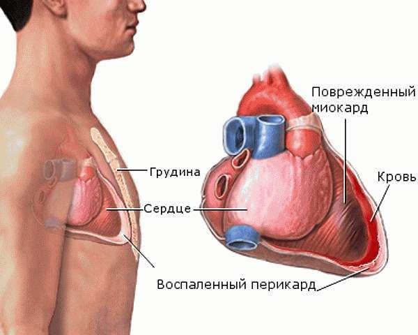 Перикард сердца