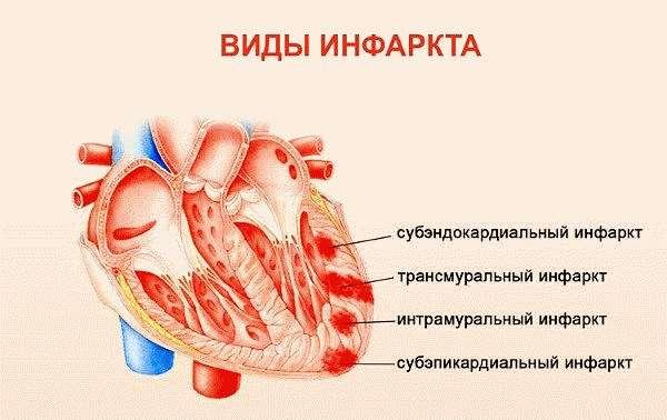 Виды инфаркта миокарда
