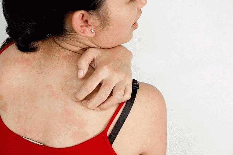 Нервная гиперемия кожи