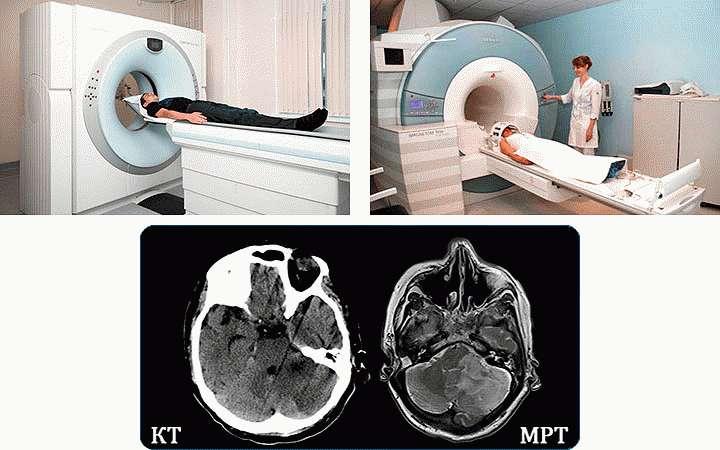 КТ и МРТ головы