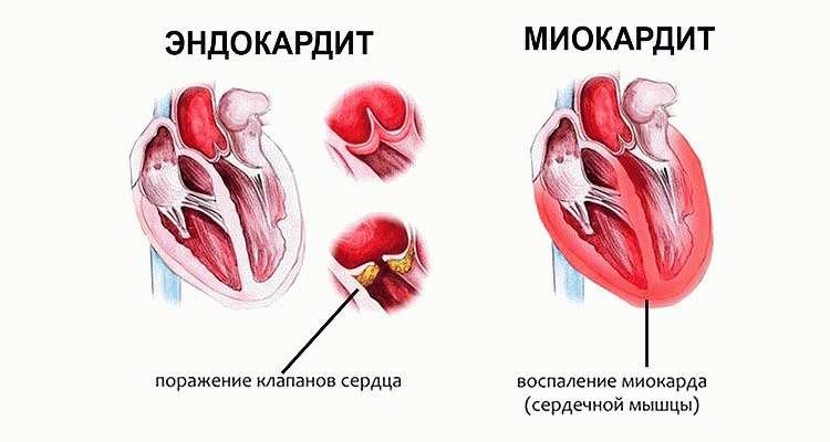 Миокардит и эндокардит
