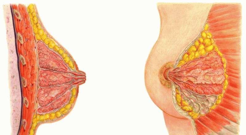 Папилломы в молочной железе
