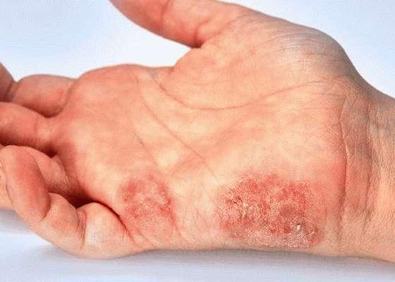 Инфицирование кожи