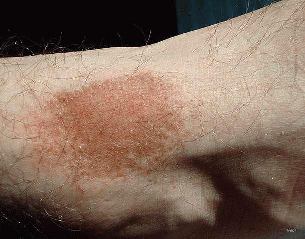 Пигментным дерматоз