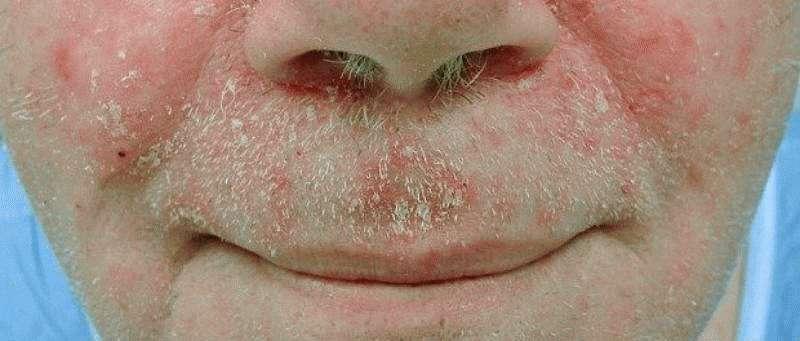Себорея лица
