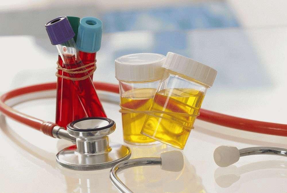 Исследование крови и мочи