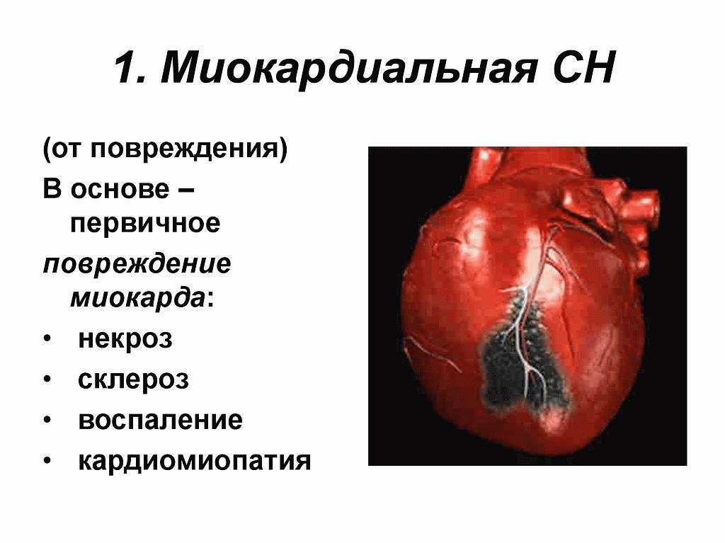 МиокардиальнаяСН