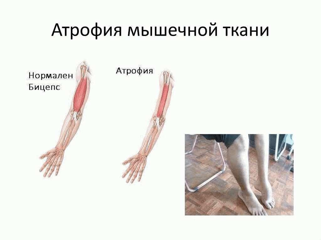 Атрофия мышечных тканей