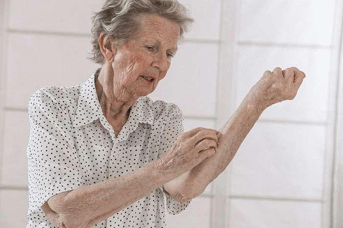 Дерматоз пожилых людей