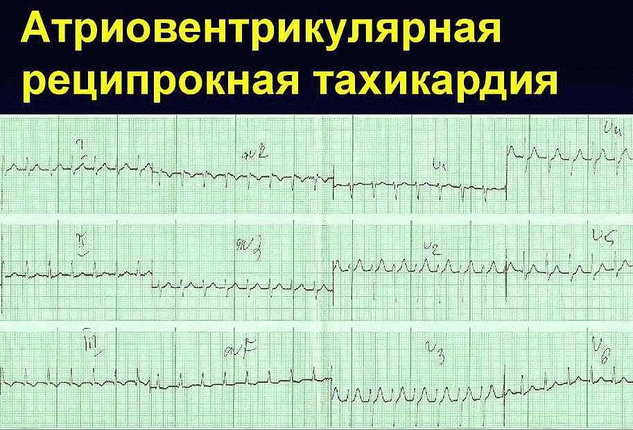 Атриовентрикулярная тахикардия