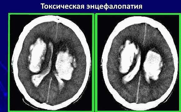 Токсическая энцефалопатия