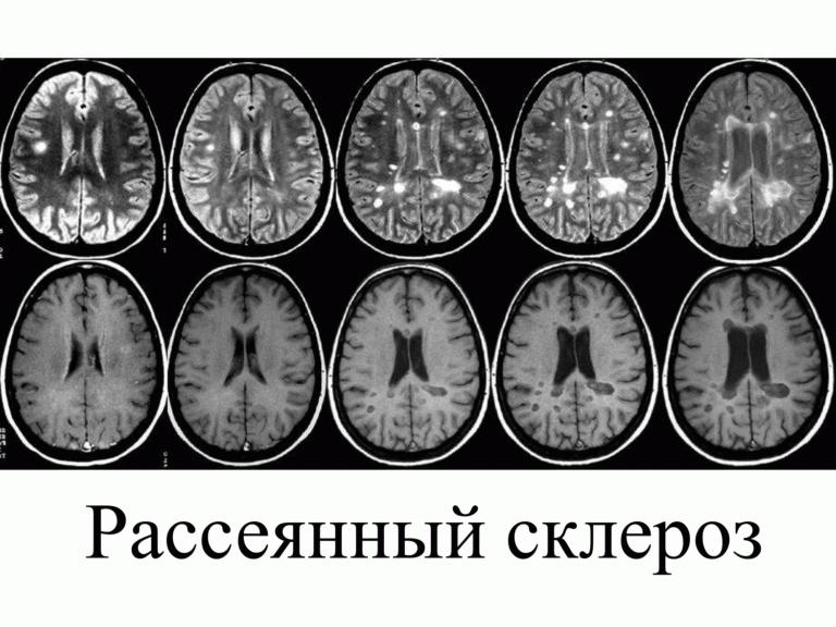 Обострение рассеянного склероза