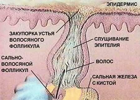 Устье волосяного фолликула