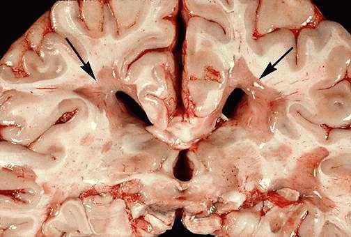 Тяжелые формы рассеянного склероза