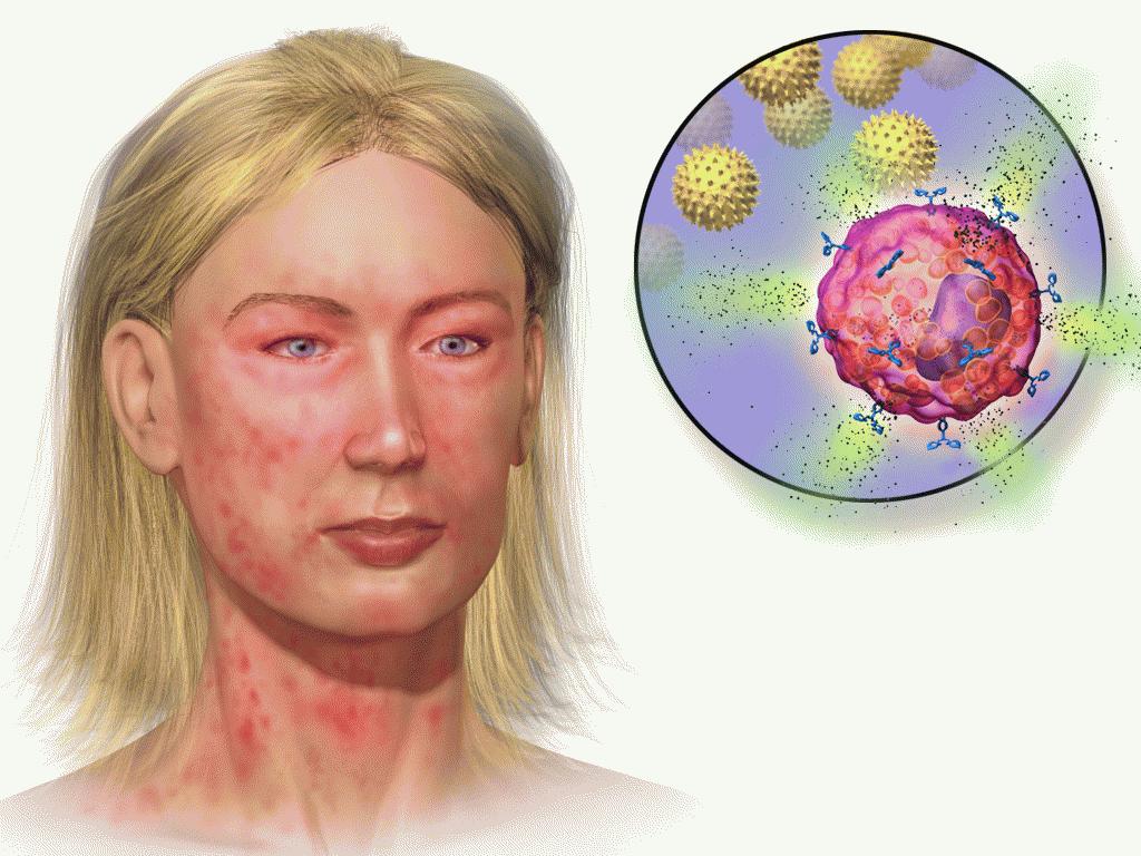 Пиоаллергиды