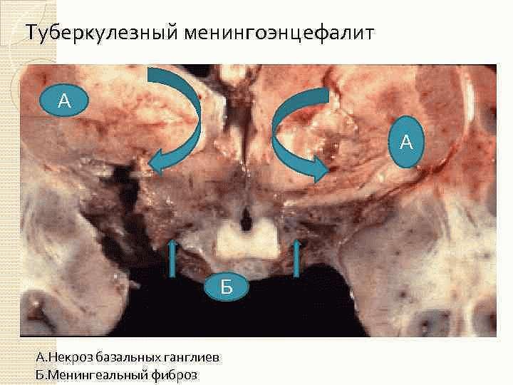 Туберкулезный менингоэнцефалит