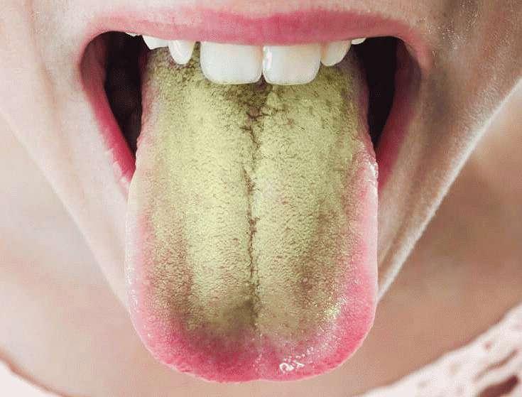 На языке желтовато-зеленый налет
