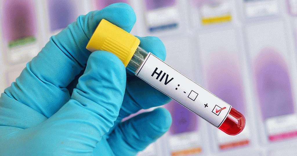 Инфицированне ВИЧ